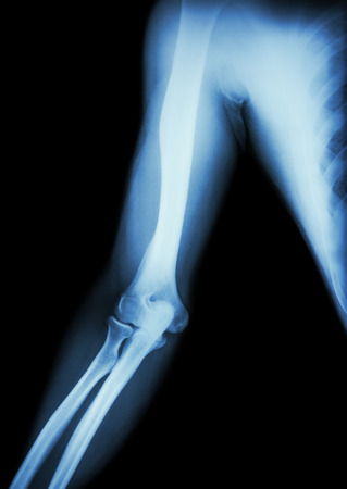 forearm: film x-ray of normal arm , elbow and forearm ( black background ) Stock Photo