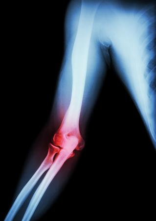 radiological: Arthritis at elbow .  film x-ray of arm , elbow , forearm and inflammation at elbow ( Gouty arthritis , Rheumatoid arthritis )  ( black background )