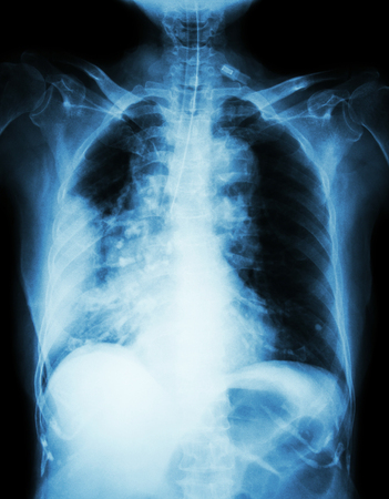 Lung cancer .  Film chest x-ray show right lung mass , wide mediastinum , pneumonia and right pleural effusion