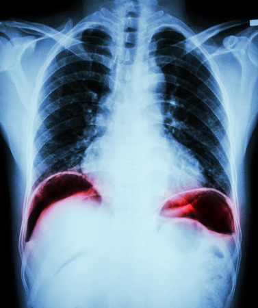 perforate: Peptic ulcer perforate . ( film chest x-ray show free air under dome of both diaphragm due to air leak from gastric ulcer or duodenal ulcer perforated ) ( surgical condition and concept ) Stock Photo