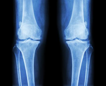 osteoarthritis: La osteoartritis tanto rodilla. AP pel�cula de radiograf�a (anter - cartel) del programa de la rodilla del espacio articular estrecho, osteofitos (espuela), esclerosis subcondral Foto de archivo