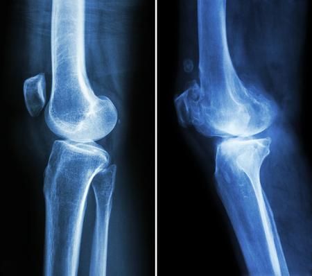 artrosis: rodilla normal (imagen izquierda) y la osteoartritis de rodilla (imagen derecha) (vista lateral)