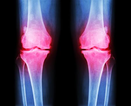 artrosis: La osteoartritis tanto rodilla. AP película de radiografía (anter - cartel) del programa de la rodilla del espacio articular estrecho, osteofitos (espuela), esclerosis subcondral Foto de archivo