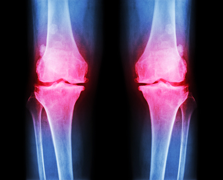 anterior: Osteoarthritis both knee .  film x-ray AP ( anterior - posterior ) of knee show narrow joint space , osteophyte ( spur ) , subcondral sclerosis