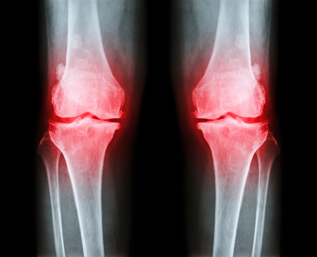 spur: Osteoarthritis both knee .  film x-ray AP ( anterior - posterior ) of knee show narrow joint space , osteophyte ( spur ) , subcondral sclerosis