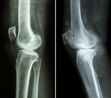 osteoarthritis: normal knee ( left image ) and osteoarthritis knee ( right image ) ( lateral view )