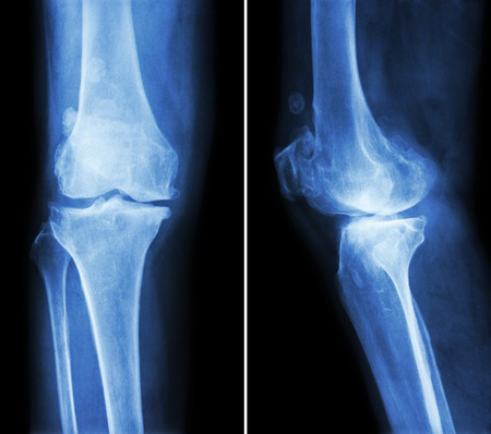 degeneration: Osteoarthritis knee .  film x-ray knee ( anterior - posterior and lateral view )  show narrow joint space , osteophyte ( spur ) , subcondral sclerosis due to degenerative change