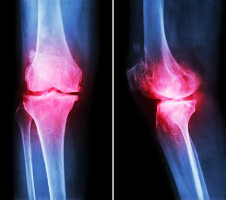 osteoarthritis: La osteoartritis de la rodilla. La esclerosis subcondral - (cartel y lateral anter) muestran espacio articular estrecho, osteofitos (espuela), debido a los cambios degenerativos de la rodilla de rayos x de pel�cula