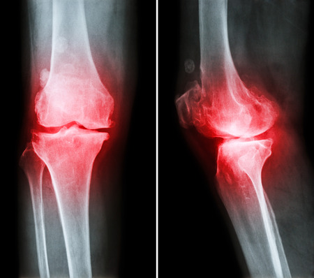 degenerative: Osteoarthritis knee .  film x-ray knee ( anterior - posterior and lateral view )  show narrow joint space , osteophyte ( spur ) , subcondral sclerosis due to degenerative change