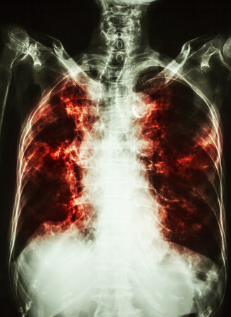 interstitial: Pulmonary Tuberculosis . film chest x-ray of old patient show interstitial infiltration both lung and calcification at trachea ( can seen shape of trachea ) Stock Photo