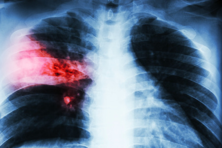infiltration: Lobar pneumonia . film chest x-ray show alveolar infiltration at right middle lobe due to tuberculosis infection . Stock Photo
