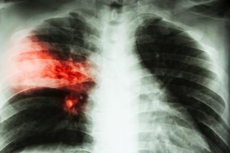 Polmonite lobare. pellicola radiografia del torace spettacolo infiltrazione alveolare a destra lobo medio a causa di infezione tubercolare.