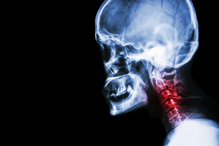 Cervical spondylosis . film x-ray skull lateral view and neck pain . 免版税图像