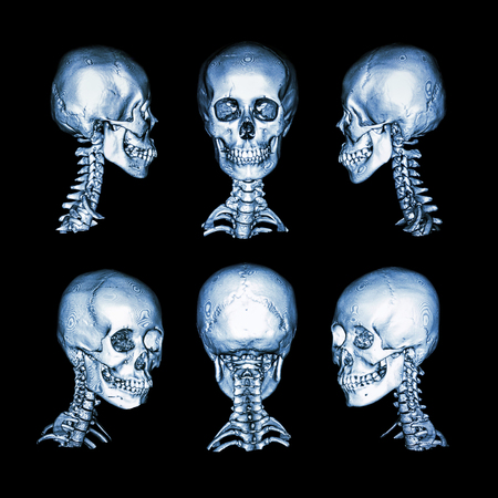 body dimensions: CT scan and 3D image . Normal human skull and cervical spine . all direction Stock Photo