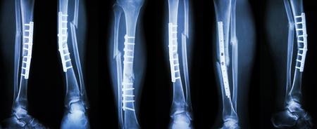 image Collection de fracture de la jambe et le traitement chirurgical par fixation interne avec plaque et vis. Pause tibia et le péroné os.