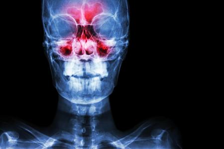 Sinusitis. Película de rayos X cráneo AP (anterior-posterior) muestran infección e inflamación en el seno frontal, el seno etmoidal, el seno maxilar y el área en blanco en el lado derecho