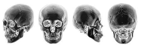 body dimensions: 3D CT scan of human skull . Multiple view . Invert color style .