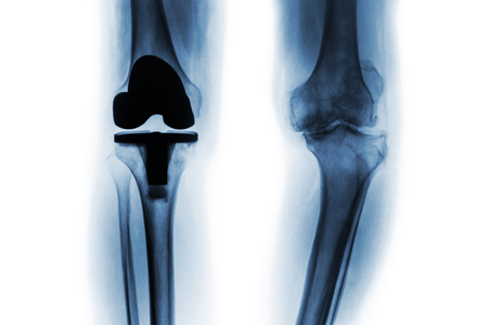 Film x-ray of osteoarthritis knee patient and artificial joint ( Total knee replacement ) . Isolated background .