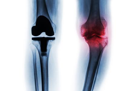 Film-Röntgenbild von Arthrose-Knie-Patienten und künstlichem Gelenk (Total Knieersatz). Getrennter Hintergrund.