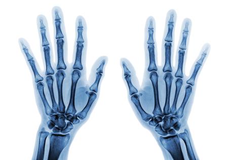 Film x-ray beide Hand AP zeigen normale menschliche Hände auf weißem Hintergrund (isoliert) Standard-Bild