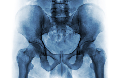 radiological: Film x-ray of normal human pelvis and hip joints .
