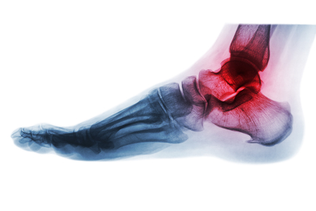 Arthritis of ankle . X-ray of foot . Lateral view . Invert color style .