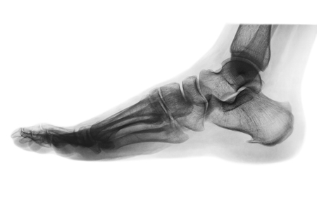radiological: X-ray normal human foot . Lateral view . Invert color style .