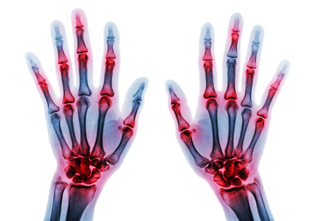radiological: Arthritis multiple joint of fingers . Film x-ray of both hands and wrists . Stock Photo