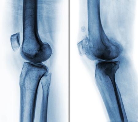 정상적인 인간 무릎 (왼쪽 이미지)과 골관절염 무릎 (오른쪽 이미지) 간의 비교. 측면보기. 스톡 콘텐츠