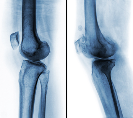 Comparison between normal human knee ( left image ) and osteoarthritis knee ( right image ) . Lateral view .