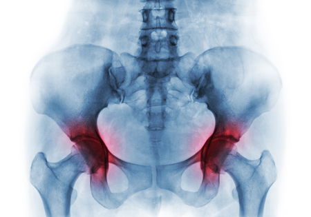 Artritis, Tanto En La Cadera. Radiografía De Película De Pelvis ...