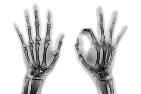 X - ray both hands with OK sign .