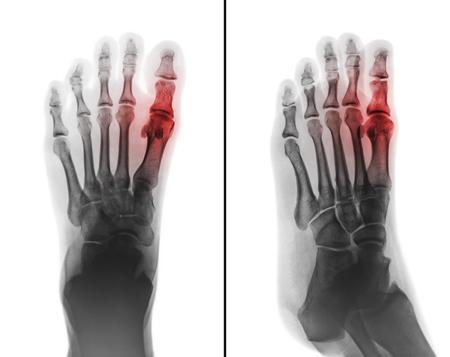 Jichtartritis. filmröntgenfoto van menselijke voet en artritis in het eerste metatarsophalangeale gewricht. 2-positie (voor- en zijaanzicht) Stockfoto