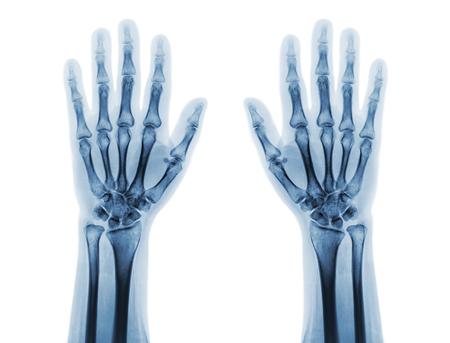 Film radiografici di entrambe le mani umane normali. vista frontale . Archivio Fotografico - 82165984
