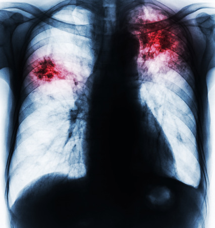 Pulmonary Tuberculosis . Film chest x-ray show fibrosis , interstitial infiltration both lung due to Mycobacterium tuberculosis infection . Stock Photo