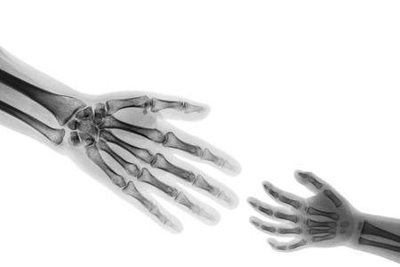 Kind der erwachsenen Hilfe. Erwachsener strecken Hand aus, um Kinderhand zu erfassen. (Konnotation: Hilfe Waise, Medizinische Hilfe) Standard-Bild - 82172558