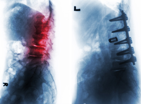 back ache: Spondylosis . Film x-ray of lumbar spine and comparison between before surgery ( left image ) and after surgery ( right image ) . Patient was operated and internal fixed . Lateral view .