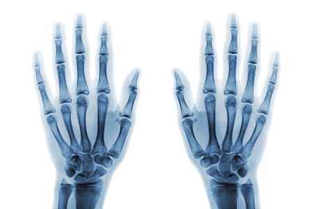 Film x-ray both hand AP show normal human hands on white background ( isolated ) . Stok Fotoğraf