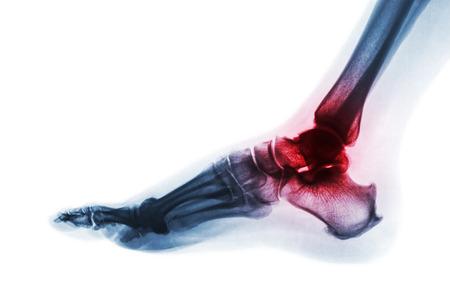 Artritis de tobillo. Radiografía de pie. Vista lateral . Invertir el estilo de color. Gota o concepto reumatoide.