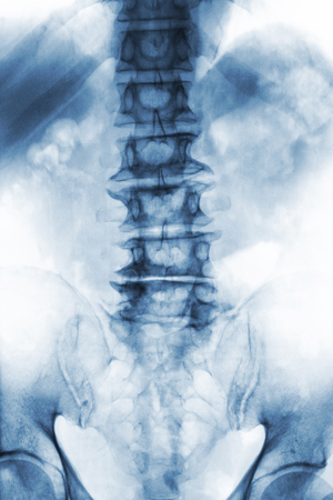 back ache: Spondylosis .  film x-ray lumbosacral spine of old aged patient show osteophyte , collapse spine from degenerative process . Front view .