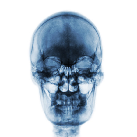 Film x-ray of normal human skull on isolated background . Front view .