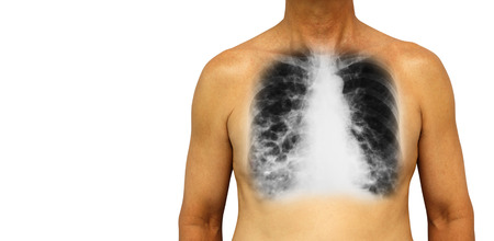 chest cavity: Bronchiectasis .  Human chest with x-ray chest show multiple lung bleb and cyst due to chronic infection . Isolated background . Blank area at Left side .