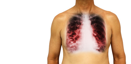 Bronchiectasis .  Human chest with x-ray chest show multiple lung bleb and cyst due to chronic infection . Isolated background . Blank area at Left side .
