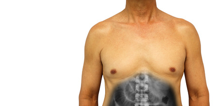 Colon cancer and Small intestine obstruction . Human abdomen with x-ray show small bowel dilated due to obstructed . Isolated background . Blank area at left side . Stock Photo