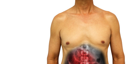 gi: Colon cancer and Small intestine obstruction . Human abdomen with x-ray show small bowel dilated due to obstructed . Isolated background . Blank area at left side . Stock Photo