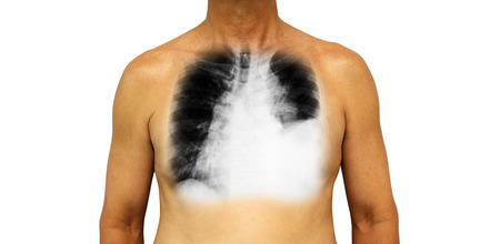 Lung cancer . Human chest and x-ray show pleural effusion left lung due to lung cancer .