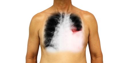 Cancro ai polmoni . Il torace umano e la radiografia mostrano versamento pleurico a sinistra del polmone a causa di cancro ai polmoni. Archivio Fotografico - 83654062