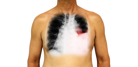 effusion: Lung cancer . Human chest and x-ray show pleural effusion left lung due to lung cancer .