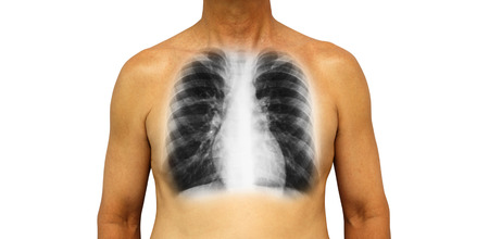 Human chest with x-ray of normal lung . Isolated background . Stock Photo