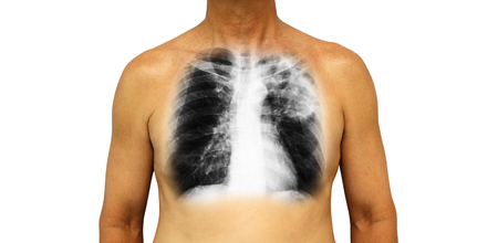 Pulmonary tuberculosis . Human chest with x-ray show patchy infiltrate left upper lung due to infection . Isolated background .